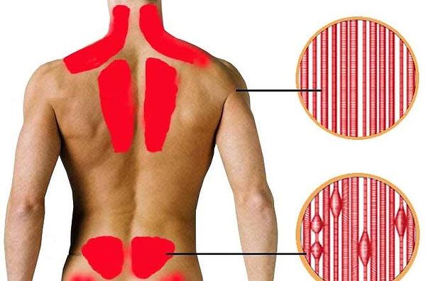 zony-miozit-spina-1.jpg