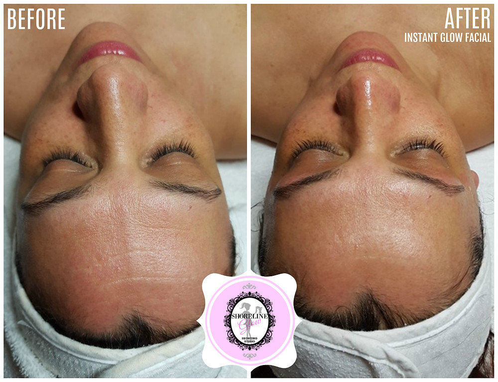 Acne Care, Anti-aging Facils, Skin Care, Best Spa
