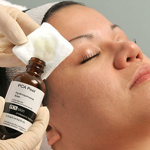 Chemical Peels in Kitchener