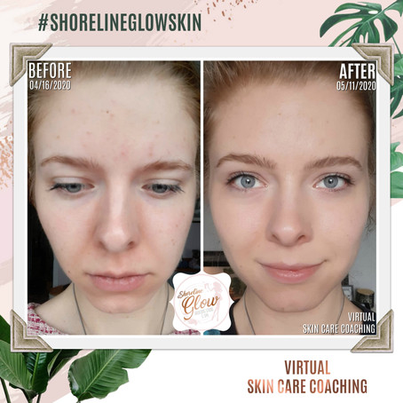 Book a Virtual Skin Consultation in KW