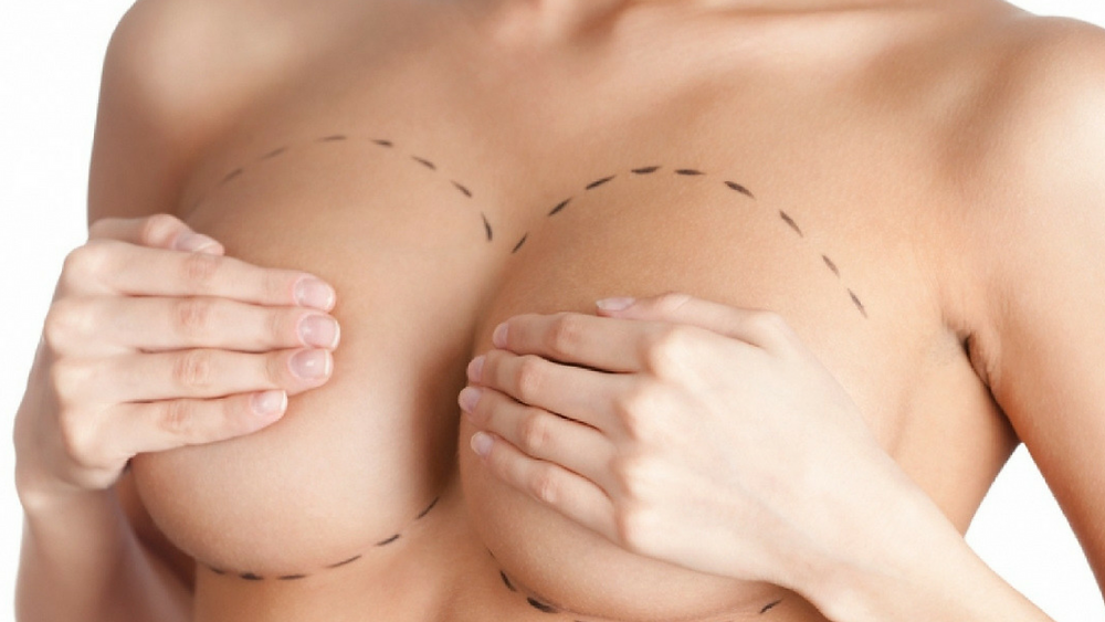 Mamoplastia-Doctor Diego Barona