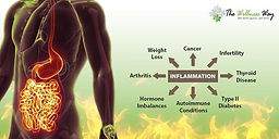 How Does Inflammation Affect Your Health?