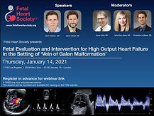 Fetal Evaluation and Intervention for High Output Heart Failure in the Setting of Vein of Galen Malformation