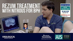 Rezum Treatment with Nitrous for BPH