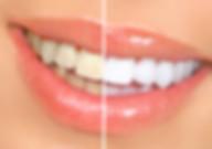 Claramento Dental - Alpha Odontologia