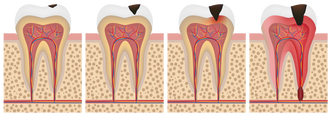 tratamento de Canal - Alpha Premium Odontologia