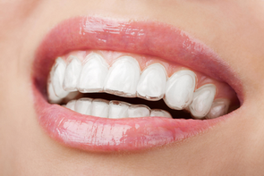 Aparelho Ortodontico Invisaling®