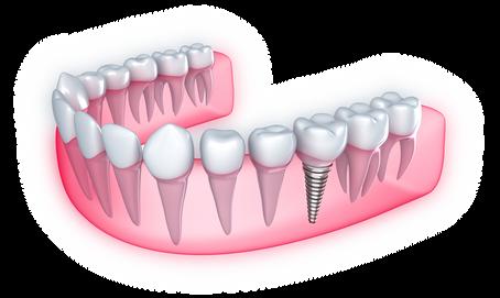 Implantes Odontológico Alpha Preium Odontologia