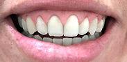 Plástica de Gengiva - Alpha Premium Odontologia