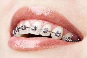 Aparelho ortodontico autoligado
