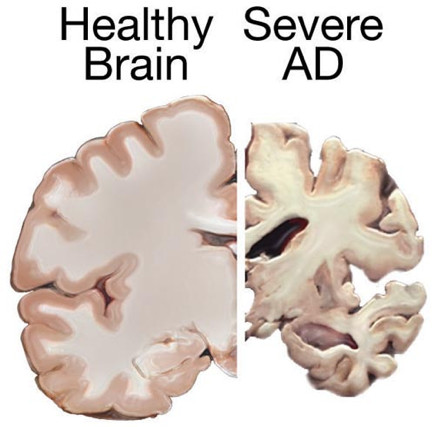 Using omega 3 fatty acids to treat Alzheimer's and other diseases?