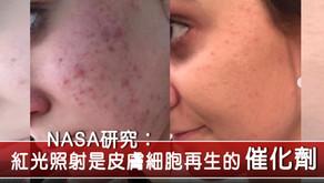 紅光照射加速傷口痊癒、修復肌膚去暗瘡救星!