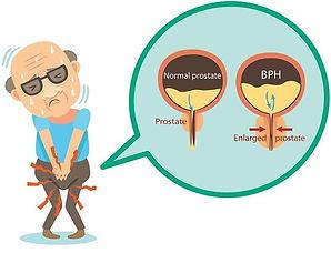 قد يسبب سرطان البروستات أعراض تشابه تضخم