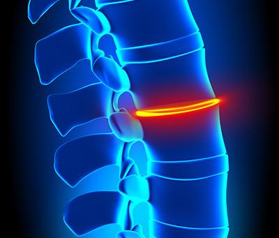 Aging Patients Can Trust Chiropractic: Davie Chiropractor