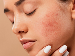 5 Mistakes You Might Be Doing That Worsen Your Acne Condition