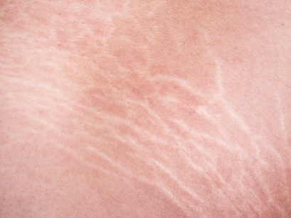 Stretch Marks | Causes & How to Deal With Them