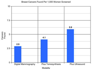 More than Mammograms, including Tomosynthesis, Needed to Find Cancers in Dense Breast Tissue