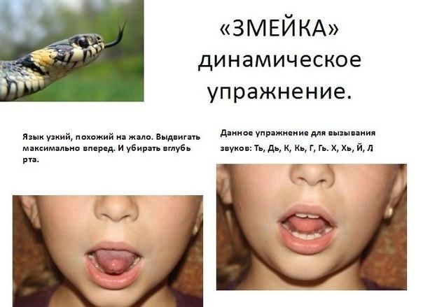 Логопедическая гимнастика для детей-зарядка для язычка- в картинках с примерами.