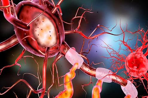 image_6279e-Neurons.jpg