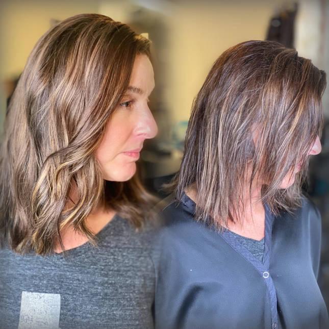 Hair Loss Solutions