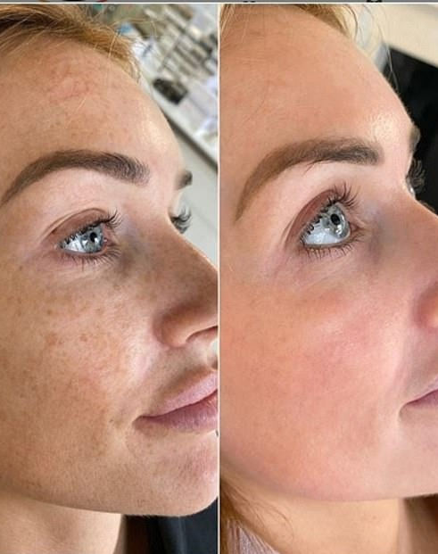 Laser Treatment Before & After
