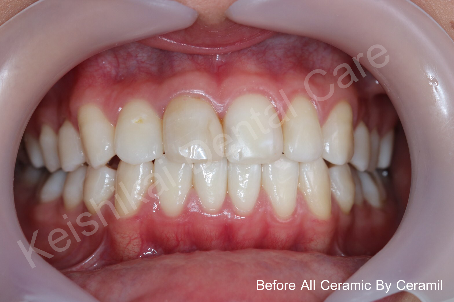 Before2-All Ceramic By Ceramil-keishikaidentalclinic