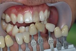 ฟันหน้าเปลี่ยนสี  bleaching ครั้งที่1 (3)