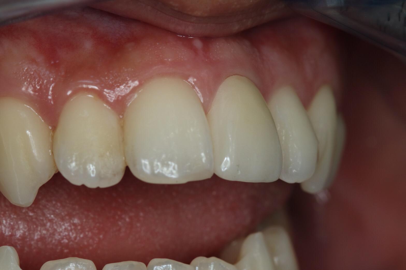 ครอบฟัน-all ceramic (4)