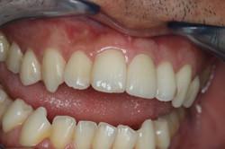 ครอบฟัน-all ceramic (5)