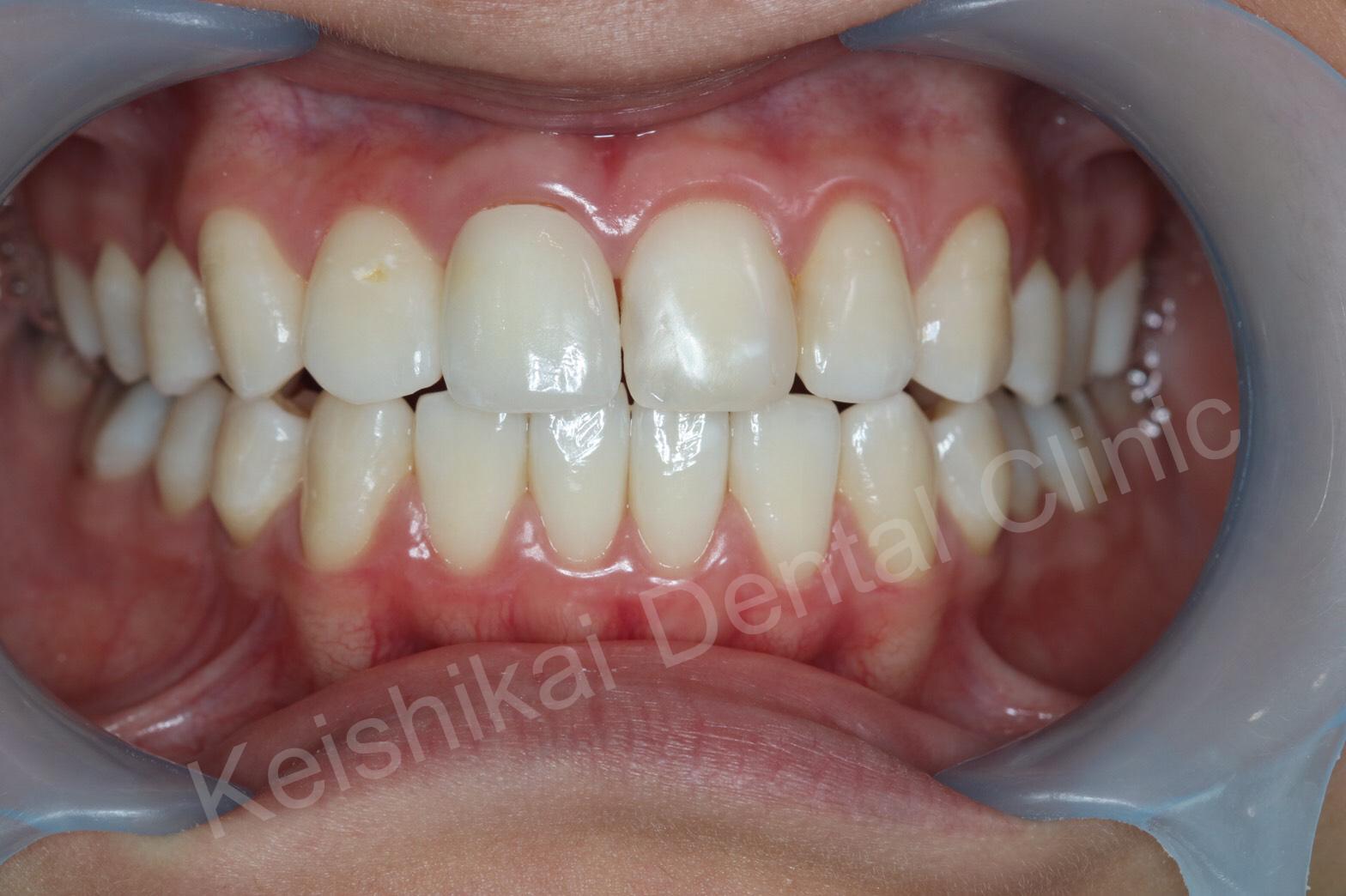 รักษารากฟันแล้วเปลี่ยนสี(Root canal treatment)ฟอกสีฟัน(bleaching)All ceramic crown (5)
