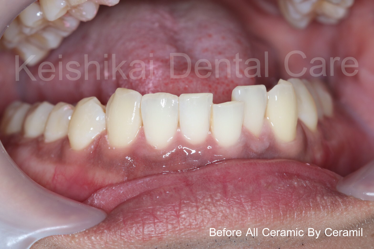 Before1-All Ceramic By Ceramil-keishikaidentalclinic