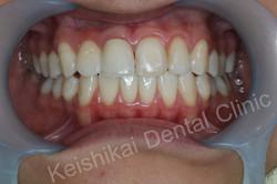 รักษารากฟันแล้วเปลี่ยนสี(Root canal treatment)ฟอกสีฟัน(bleaching)All ceramic crown (6)