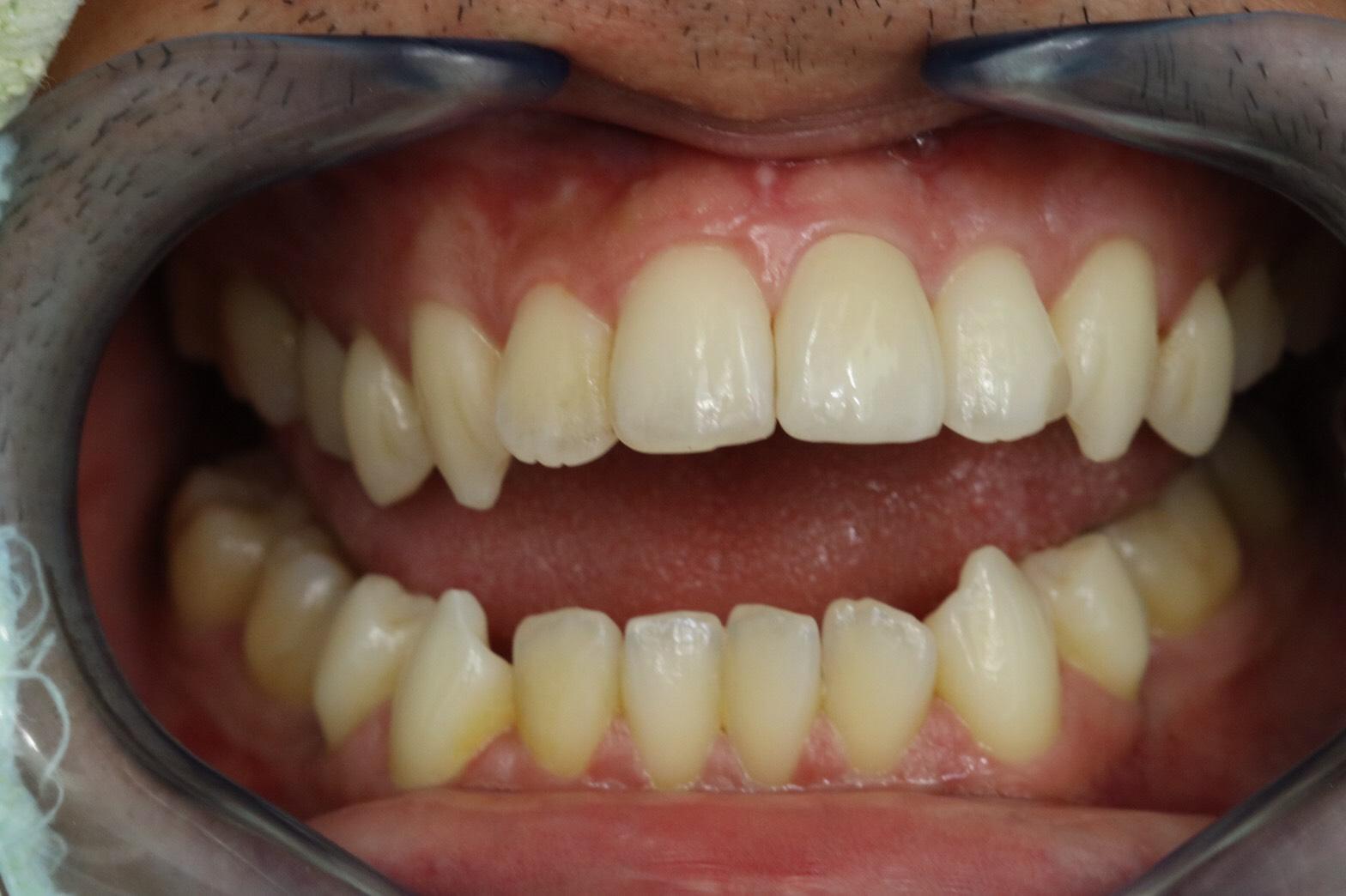 ครอบฟัน-all ceramic (3)