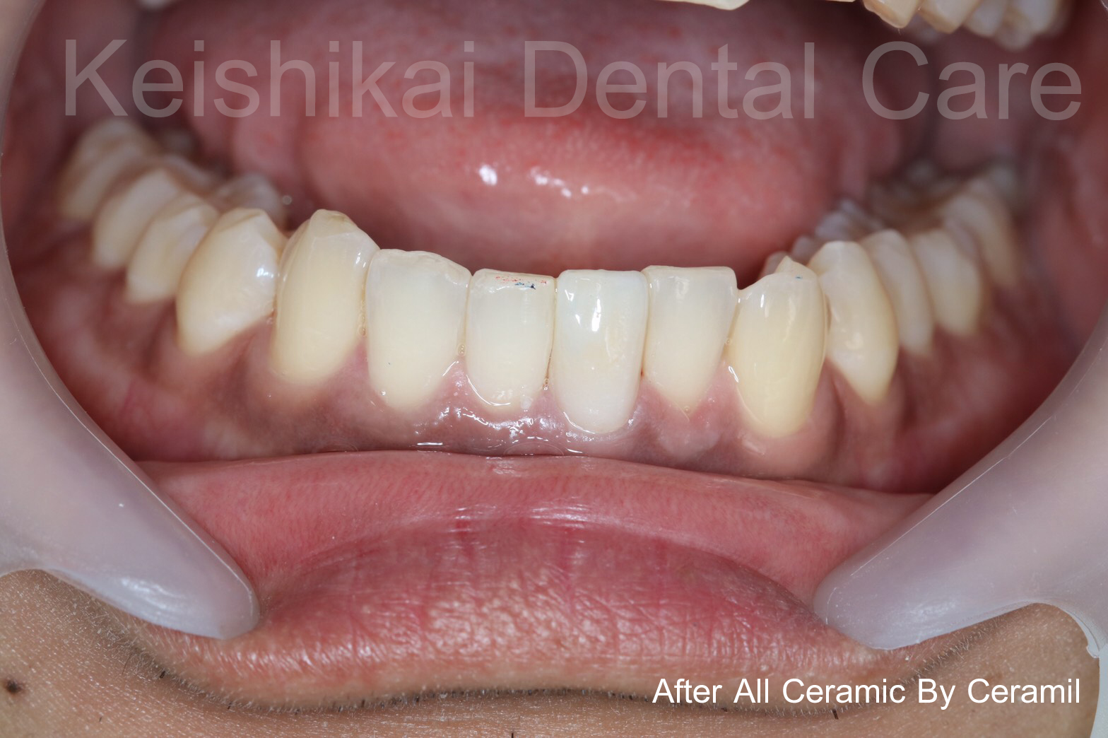 After2-All Ceramic By Ceramil-keishikaidentalclinic