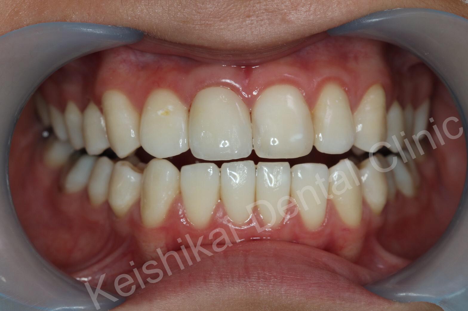 รักษารากฟันแล้วเปลี่ยนสี(Root canal treatment)ฟอกสีฟัน(bleaching)All ceramic crown (7)