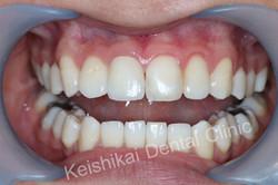 รักษารากฟันแล้วเปลี่ยนสี(Root canal treatment)ฟอกสีฟัน(bleaching)All ceramic crown (2)