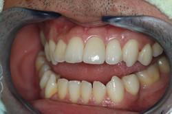 ครอบฟัน-all ceramic (6)