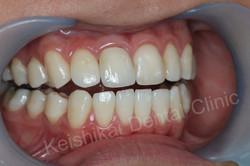 รักษารากฟันแล้วเปลี่ยนสี(Root canal treatment)ฟอกสีฟัน(bleaching)All ceramic crown (4)