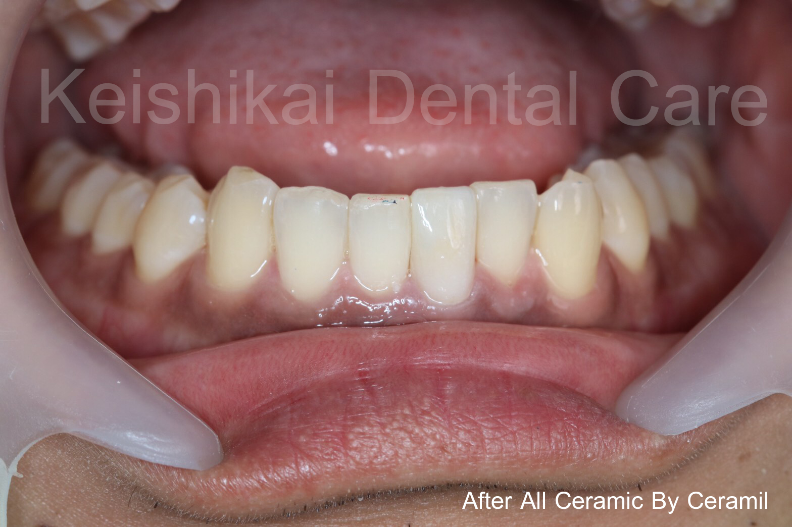 After1-All Ceramic By Ceramil-keishikaidentalclinic