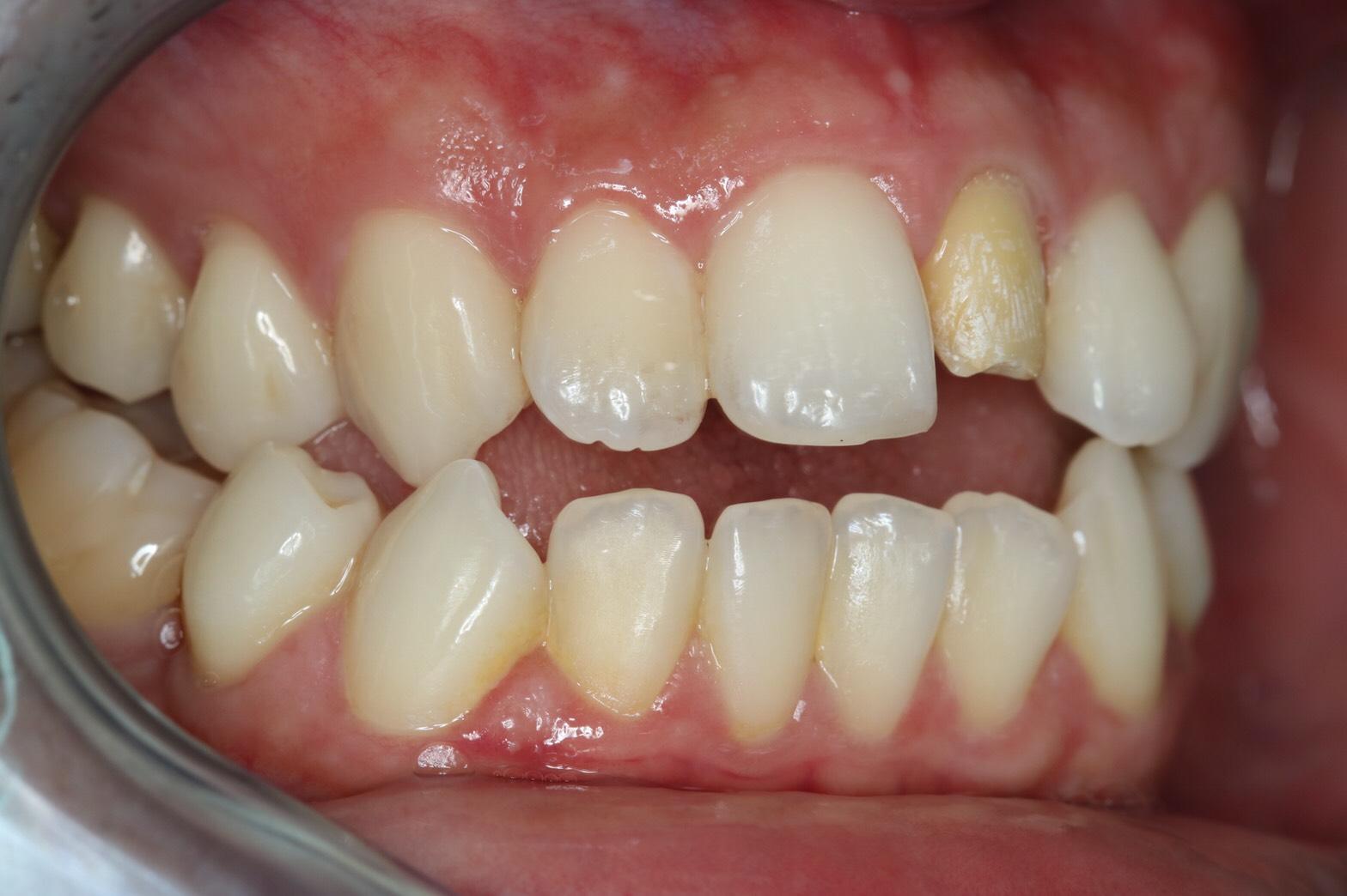 ครอบฟัน-all ceramic (2)