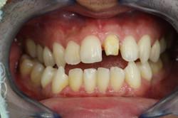 ครอบฟัน-all ceramic (1)