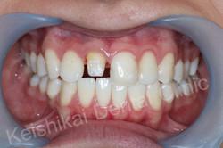 รักษารากฟันแล้วเปลี่ยนสี(Root canal treatment)ฟอกสีฟัน(bleaching)All ceramic crown (1)