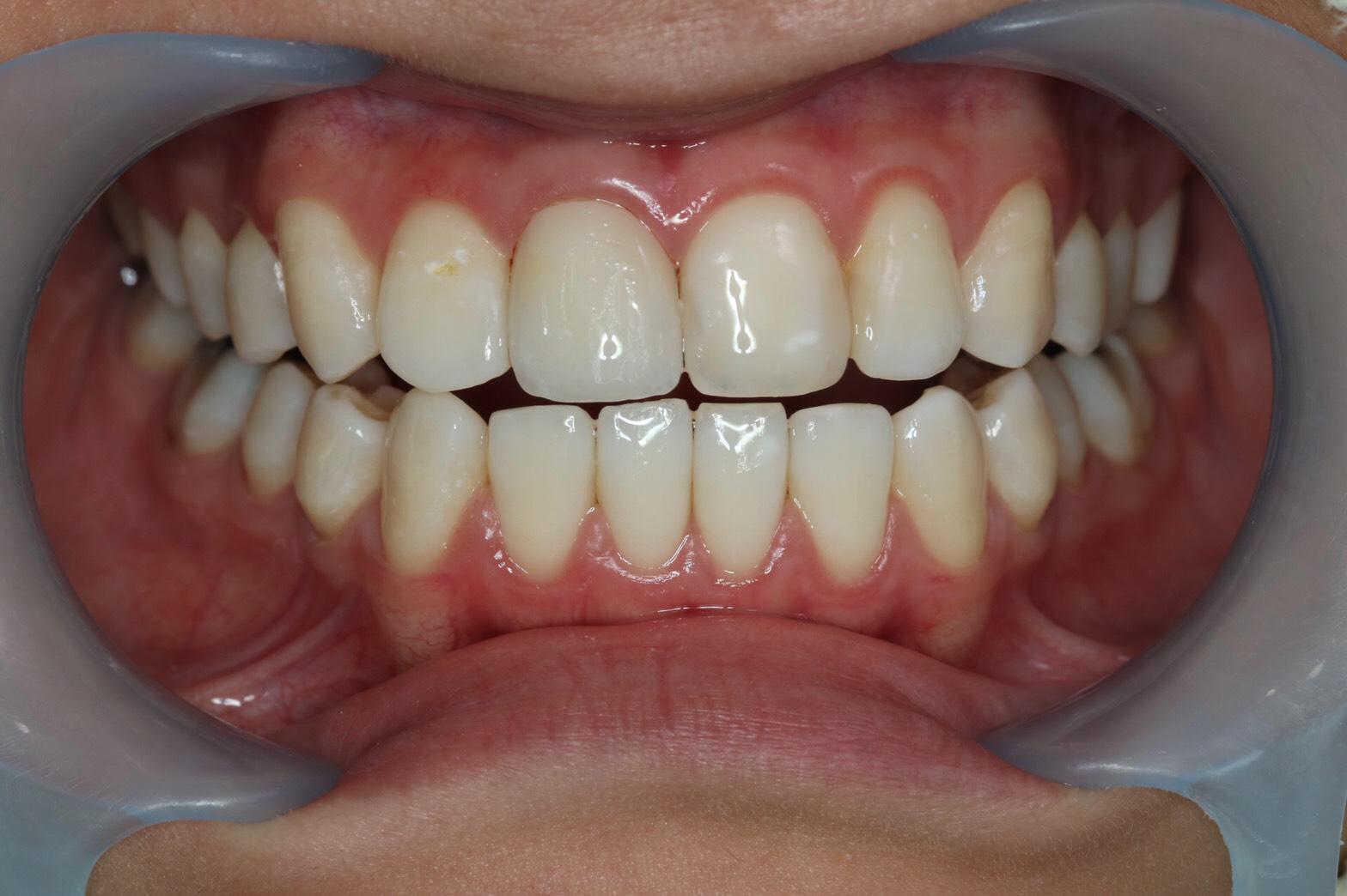 รักษารากฟันแล้วเปลี่ยนสี(Root canal treatment)ฟอกสีฟัน(bleaching)All ceramic crown (8)
