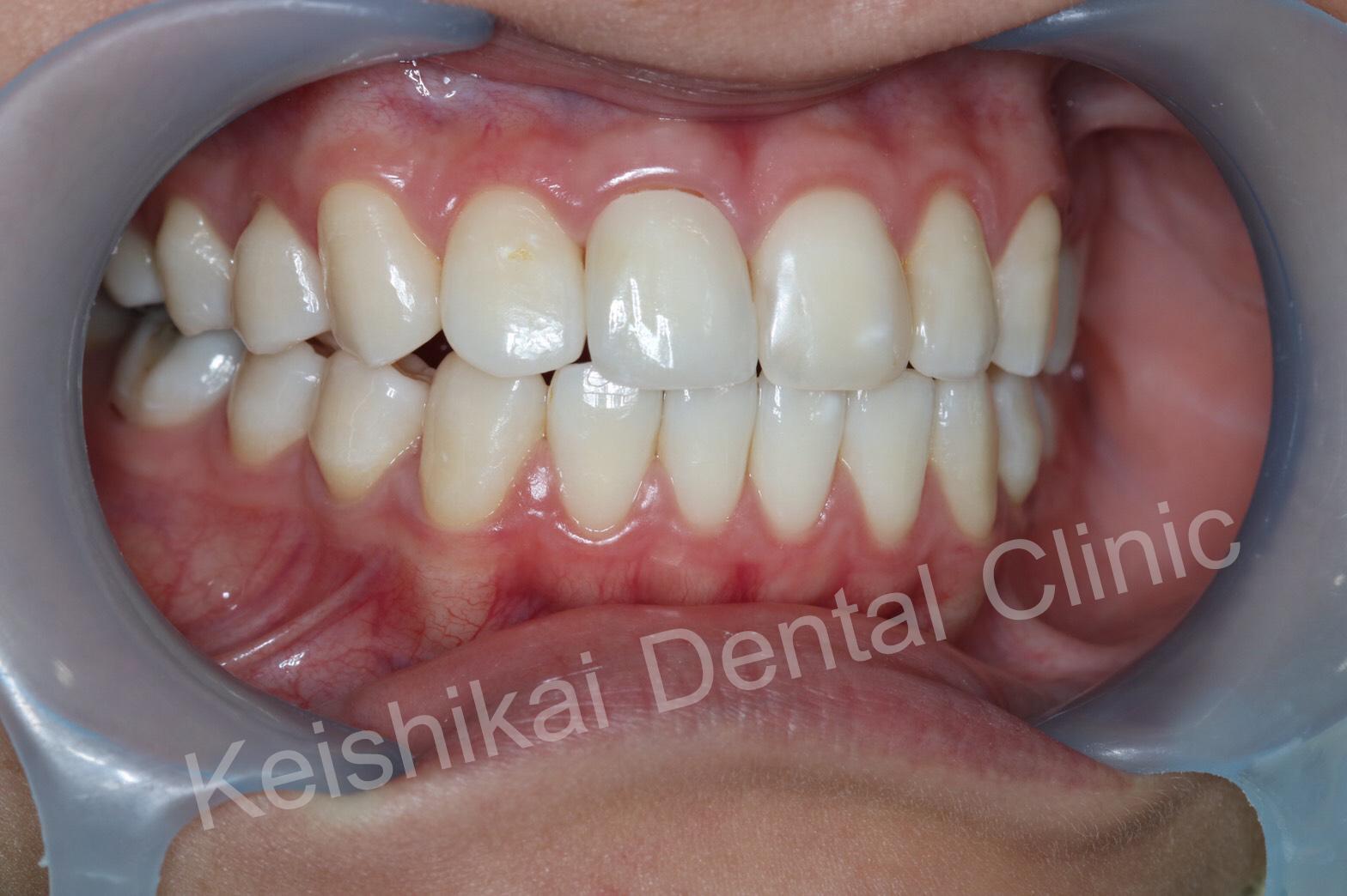 รักษารากฟันแล้วเปลี่ยนสี(Root canal treatment)ฟอกสีฟัน(bleaching)All ceramic crown (3)