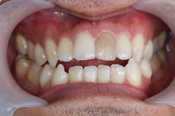 ฟันหน้าเปลี่ยนสี  bleaching ครั้งที่1 (2)