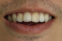 ฟันหน้าเปลี่ยนสี  bleaching ครั้งที่1 (1)