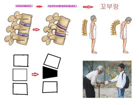 스피노메드는 척추의 개인별 모형에 따라 ...