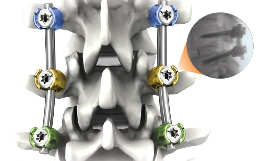 척추관협착증으로 척추유합술( 척추고정수술) 후 척추압박골절  발생