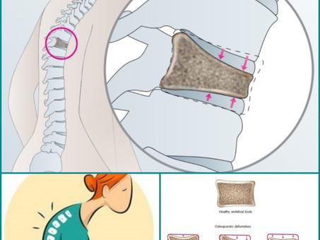 척추압박골절 치료를 위해서 필수, 보조기의 선택