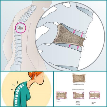 척추압박골절 후 삶의 질 저하